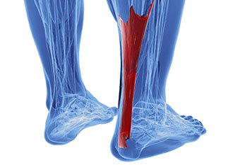 achilles tendonitis treatment in the Chicago, IL 60614 and 60656 area