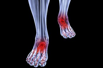 arthritic foot and ankle care treatment in the Chicago, IL 60614 and 60656 areas