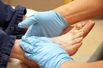 diabetic foot treatment in the Chicago, IL 60614 and 60656 area