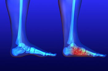 Flat feet and Fallen Arches treatment in the Chicago, IL 60614 and 60656 area