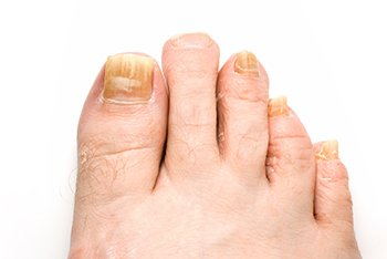 fungus toenails treatment in the Chicago, IL 60614 and 60656 area