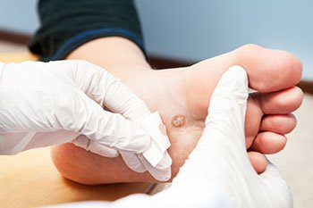 Plantar warts treatment in the Chicago, IL 60614 and 60656 area
